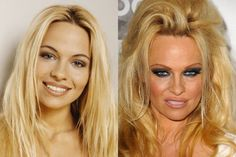 Plastic surgery horror show: A-list cosmetic surgery disasters slammed by Frasie. - - Plastic surgery horror show: A-list cosmetic surgery disasters slammed by Frasier star – CelebrityFIX <! Plastic Surgery Facts, Body Plastic Surgery, Bad Plastic Surgeries, Plastic Surgery Gone Wrong, Celebrity Plastic Surgery, Johnny Depp, Worst Celebrities, Celebs, Rhinoplasty Before And After