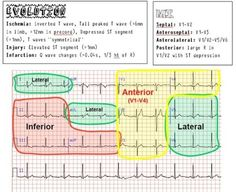 ekg interpretation made easy - ekg interpretation made easy . ekg interpretation made easy heart Cardiac Nursing, Nursing Career, Nursing Tips, Nursing Notes, Nclex, Bola Medicinal, Ekg Interpretation, Ecg, Nursing Information