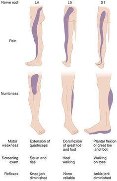 sciatic nerve pain use ice or heat Sciatica Pain Treatment, Sciatic Pain, Sciatic Nerve Damage, Sciatica Stretches, Sciatica Symptoms, Scoliosis Exercises, Peripheral Nerve, Degenerative Disc Disease, Spine Health