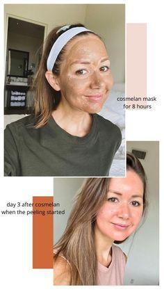 Lighten Skin Tone, How To Fade, Second Pregnancy, Glowy Skin, Facial Oil, 30 Day, Rid, Messy Bun