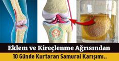 Eklem ağrılarına son veren elma sirkesi yumurta kabuğu tedavisi