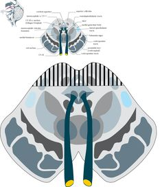 Dorsal Midbrain Syndrome: Parinaud's syndrome ( vertical gaze palsy)