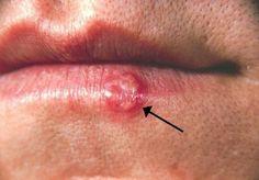 bouton de fievre herpes Soigner un bouton de fièvre avec les huiles essentielles.