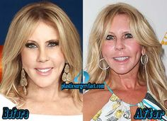 Vicki Gunvalson Before and After Plastic Surgery | http://plasticsurgeryfact.com/vicki-gunvalson-plastic-surgery-before-and-after-photos/