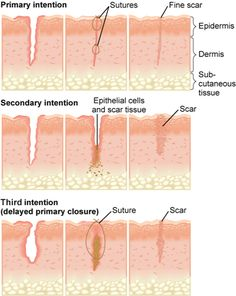 Wound healing by primary, secondary, and third intention