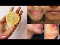 Îndepărtați părul nedorit permanent acasă în 3 zile cu masca Lemon Home remediu / îndepărtarea - YouTube Natural Hair Removal, At Home Hair Removal, Pores, Unwanted Hair, Youtube, Facon, Facial Hair, Face Care, Home Remedies