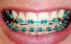 The teal braces are usually the special dental devices that are all highly beneficial to repair minor jaw and tooth related problems. Braces Bands, Braces Tips, Dental Braces, Teeth Braces, Braces Retainer, Cute Braces Colors, Getting Braces, Diamond Teeth, Invisible Braces