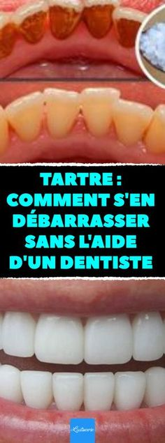 Tartar: how to get rid of it without the help of a dentist. Here are 4 techniques to get rid of it yourself! Tartar Removal, Emergency Dentist, Keto Diet For Beginners, Dental Care, How To Get Rid, Health Diet, Dentistry, Coco, Aide