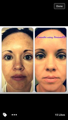 Not just for aging skin - all skin!!! Nerium Results. www.amandaeller.nerium.com