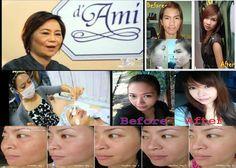 listen 2 your skin call 00 66 84 2592278... http://www.facebook.com/korea2youbyhylife.beautiful... http://beautynonstop.myreadyweb.com/