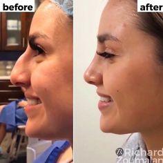 SÓ VENTA né galera 😍😍😍 A gente ama resultados de cirurgia plástica de nariz 👏🏻👏🏻 with One month… Nose Plastic Surgery, Nose Surgery, Rhinoplasty Before And After, Rhinoplasty Surgery, Facial Anatomy, Implant, No Rain, Lip Fillers, Laser Hair Removal