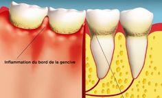 Les maladies des gencives sont des tueurs silencieux – Voici comment vous pouvez les guérir ! Selon une étude menée par l'Association Dentaire Française (ADF), plus de 80% des personnes entre 35 et 44 ans sont touchées par des maladies parodontales (maladies des gencives) en France. Ce chiffre inquiétant pousse à renforcer les plans de prévention et de traitement… Voici les gestes qui sauvent.