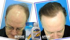 Argan Rain Anti Hair Loss Sulfate Free Shampoo Reviw : Follow: http://www.pinterest.com/mkeanderson/ Like: https://www.facebook.com/ArganRainHairLossTreatment?ref=hl Get more Information : http://www.arganrainproducts.com/ Click order : http://www.arganrainproducts.com/satinal_argan.html Follow : https://twitter.com/ellison_brady Follow : http://thebestmovietrailer.tumblr.com/ Follow Blogger : http://arganrainshampooproduct.blogspot.com/ Follow  Wordpress : http://felijay315.wordpress.com…