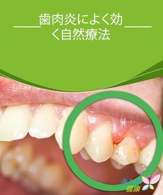 歯肉炎によく効く自然療法  歯垢は放っておくと歯石になり、取りのぞくのがさらにむずかしくなります。どちらも私たちの歯のエナメル質を溶かしてゆき、やがて歯を失う結果を招いてしまいます。