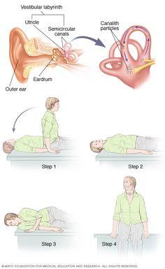 Acupuncture Holistic Healthcare Illustration showing canalith repositioning Vertigo Causes, Vertigo Relief, Acupuncture, Acupressure, Epley Maneuver, Vertigo Exercises, Lymph Massage, Vestibular System, Physical Therapy