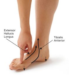 Poses to Prevent Bunions & Relieve Bunion Pain 9 Poses to Prevent Bunions & Relieve Bunion Pain Bunion Exercises, Foot Exercises, Foot Stretches, Bunion Remedies, Bunion Relief, Pain Relief, K Tape, Yoga International, Foot Pain