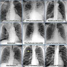 chest xray pneumonia - Google Search