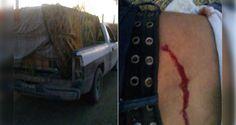 Huachicolero herido en balacera contra policías