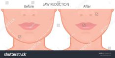 A young white female face before and after plastic surgery . A young white female face before and after plastic surgery – jaw reduction. Close up view. For advertising of plastic surgery, me… Types Of Plastic Surgery, Plastic Surgery Photos, Facial Procedure, Operation, After Surgery, Female Face, Abstract Photos, Premium Wordpress Themes, Asana