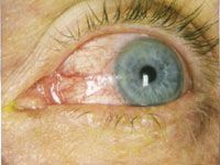 Current Treatment of Ocular Rosacea Ocular Rosacea, Acne Rosacea, Pimples, What Causes Rosacea, Chronic Dry Eye, Natural Treatments
