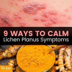 Is This Crazy Rash An Allergic Reaction Or Autoimmune Lichen Sclerosus Natural Remedies Lichen Sclerosus Treatment Natural Treatments