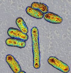 As we learn more about DNA in viruses, bacteria and animals, we can see that moving particles of DNA, called Transposable Elements or TEs, might be the most critical for adaptation.