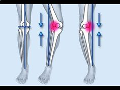 Bow Leg Correction, Bow Legged, Bow Leg Surgery, Bow Shaped Legs, Can You Fix Bow Legs bowlegs-remedy.pl... 100% natural way to straighten your legs Having bowlegs or knock-knees is frustrating… As it appears the only way to straighten your legs is to have expensive surgery. But that's risky… as all sorts of serious problems can arise… and there's no guarantee it will work anyway. Plus, the horrendous scars it leaves are downright ugly. So with this in mind… Is there