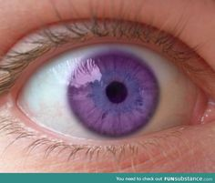This is the Alexandria's Syndrome of the violet eyes!