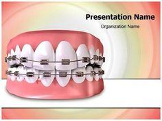Download our professionally designed dental doctor ppt template check out our professionally designed teeth braces ppt template download our teeth braces toneelgroepblik Gallery