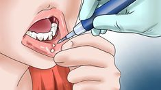 Learn how to get rid of canker sores and how to treat canker sores. Canker sores also known as mouth ulcers or aphthous stomatitis can form on the gums inner cheeks and lips (anywhere inside of the mouth). Canker sores while annoying are common and usually heal in a week or two. They are not to be confused with cold sores which form on the outside of the mouth. Here are a few suggestions to help deal with these pesky ulcers.  How to get rid of canker sore is the question everyone asks when…