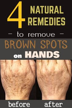 4 natural remedies to remove brown spots on hands.