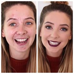 Zoella with and without makeup. This just shows what the power of makeup can do!