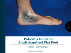 Adult acquired flat foot can be a painful condition that often affects the quality of one's life. Imagine you have pain with every step taken and are punished for exercising. This will severely affect one's quality of life, general health, and mental status. This ebook below was written to help the reader get to the root of the problem, and to discover what treatment options make the most sense. Early treatment intervention is ideal, the longer one waits, could lead to limited treatment…