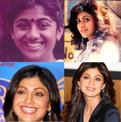 Bollywood Celebs Then and Now - Plastic surgery