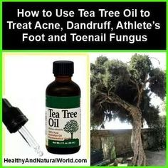 http://mkthlth2.digimkts.com I wish I had known about this years ago toe fungus listerine How to Use Tea Tree Oil to Treat Acne, Dandruff, Athlete's Foot and Toenail Fungus http://www.healthyandnaturalworld.com/tea-tree-oil-for-acne-dandruff-athletes-foot-toenail-fungus/ Are you one of the many people who suffer from acne, dandruff, athlete's foot or toenail fungus? Click here to find out how tea tree oil can help you to get rid of all these nuisances. #ToenailFungusPeople