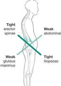 High Hip A misaligned pelvis (one side higher than the