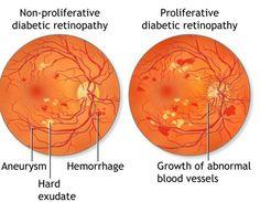 proliferative diabetic retinopathy neovascularization - Google Search