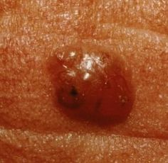 Basal Cell Carcinoma: The Facts
