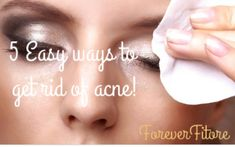 Forever Fitore-5 Easy ways to get rid of acne