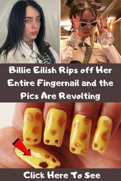 Billie Eilish Rips off Her Entire Fingernail and the Pics Are Revolting Wierd Facts, Funny Facts, Sequin Jumpsuit, Colorful Eye Makeup, Crate Training, Family Outing, Love Wallpaper, Dog Crate, Weird World