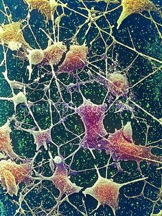 Nerve cells. Coloured scanning electron micrograph (SEM) of nerve cells, known as neurones. Nerve cells occur in the brain, spinal cord, and in ganglia. Each nerve cell has a large cell body (brown) with several long processes extending from it. The processes usually consist of one thicker axon and several thinner branched dendrites. The dendrites collect information in the form of nerve impulses from other nerve cells and pass it to the cell body.