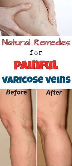 Natural remedies for painful varicose veins - Beauty-total.org