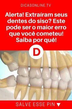 Dentes do siso | Alerta! Extraíram seus dentes do siso? Este pode ser o maior erro que você cometeu! Saiba por quê! | Por que escondem isso de você? Leia e saiba tudo!