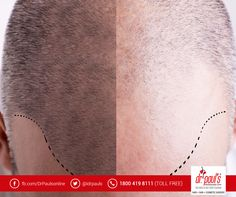 The surgeons of Dr. Paul's Multispecialty Clinic have vast experience in performing FUE #hairtransplantation. But, they are not only limited to the surgery alone but also provide medical treatment to fight hair loss and further progression of #baldness. So, if you are suffering from severe #hairloss, contact the clinic immediately.