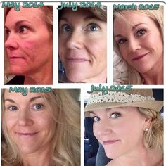 What a difference a year makes! Check out this Rodan + Fields consultant's results! Using Unblemish in the beginning and then the Redefine Power Pack. Amp Md Roller, Rodan And Fields Canada, Rodan And Fields Redefine, Acute Care, Skin Regimen, Hormonal Acne, Skin Firming, Skin Problems