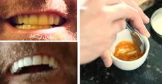 Here's an easy and natural solution. Teeth Whitening Remedies, Natural Teeth Whitening, Natural Bleach, Healthy Teeth, White Teeth, Natural Solutions, Natural Home Remedies, Beauty Care, Skin Care Tips