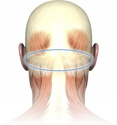 Trigger points in the suboccipital muscle group are the most common cause of tension headaches.]