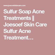 Sulfur Soap Acne Treatments || Joesoef Skin Care Sulfur Acne Treatment…