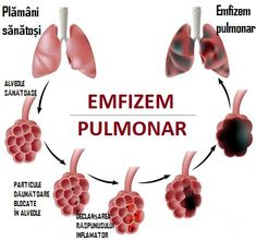 EMFIZEMUL pulmonar – cauze, simptome, tratament naturist Good To Know, Ale, Health, Anatomy, Thermomix, Health Care, Ale Beer, Ales, Beer