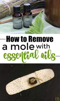 How to Remove Moles and Warts with Essential Oils Essential Oil Uses, Doterra Essential Oils, Yl Oils, Young Living Oils, Young Living Essential Oils, Mole Removal, Natural Medicine, Herbal Medicine, Health Remedies